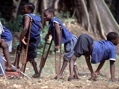 Polio-Children