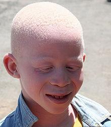 albino murders in Tanzania