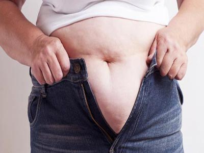 Obesity. Photo; LinkedIn