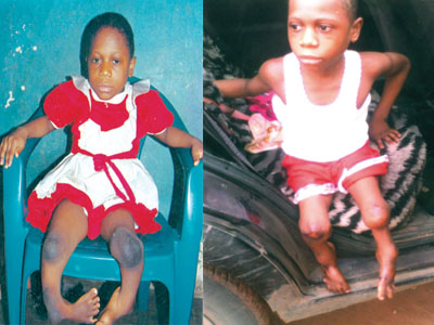 Two of  the physically-challenged kids