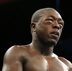 Andre Berto after the fight.  PHOTO:  cleveland