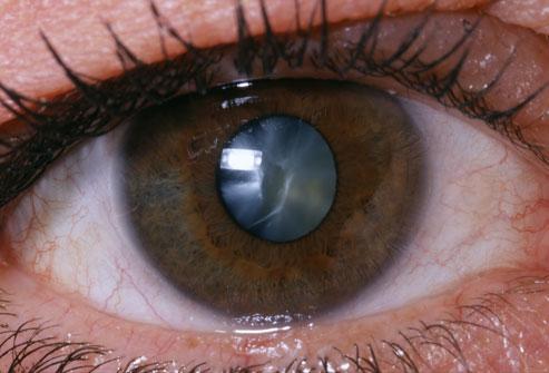 PHOTO: www.webmd.com