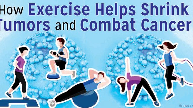 Exercise, nightly fasting reduce cancer risk