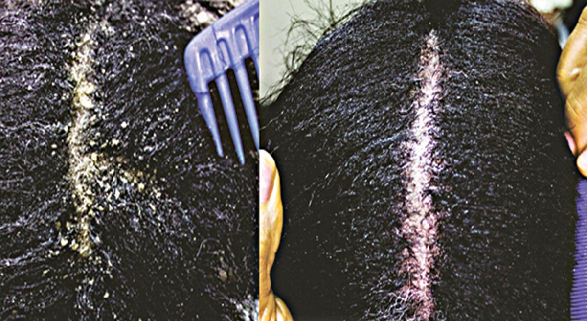 How to get rid of dandruff naturally fast