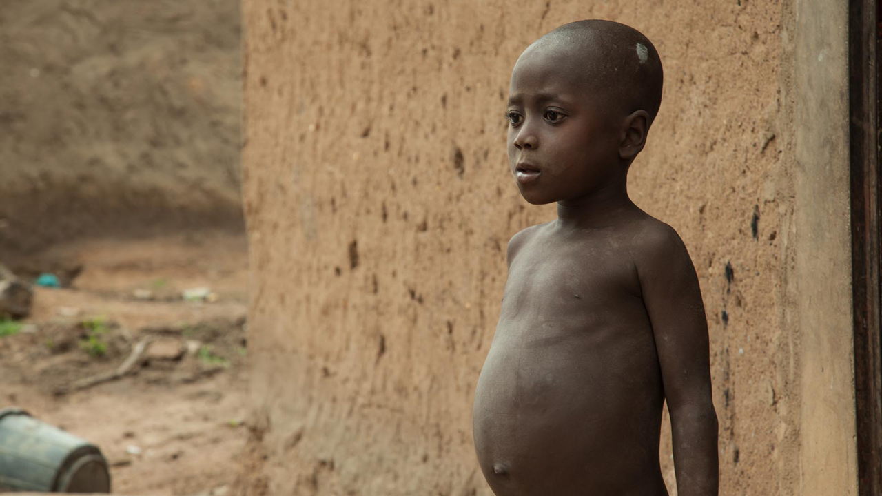 gain unveils plans to reduce malnutrition in nigeria by