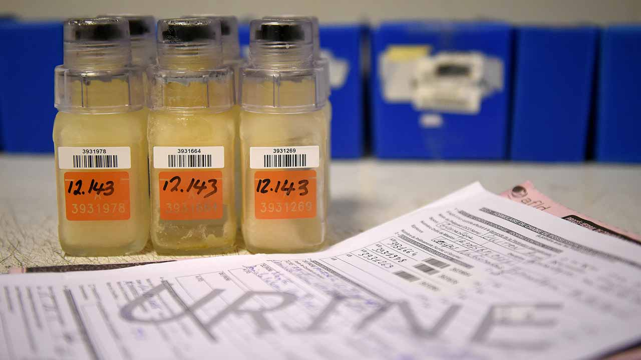 (FILES) This file photo taken on December 15, 2015 at the French national anti-doping laboratory in Chatenay-Malabry, outside Paris shows urine samples in the same bottles used to analyse Russian athletes urine at the 2014 Sochi Winter Olympics. Salt and coffee were used to conceal positive drug tests by Russian athletes, doping investigator Richard McLaren revealed on December 9, 2016. Former Moscow doping laboratory director Grigory Rodchenkov swapped positive urine samples with previously collected clean samples, adding salt and coffee to replicate the consistency of the original samples. FRANCK FIFE / AFP