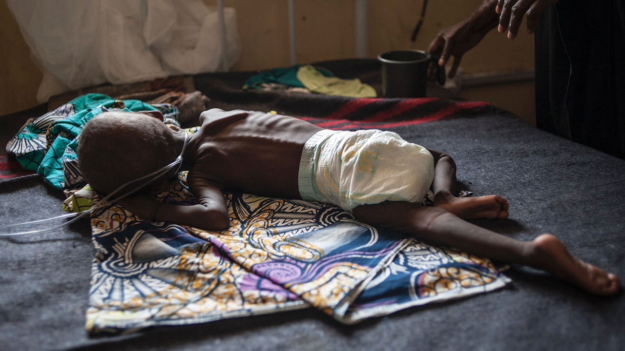 A young child suffering from severe malnutrition lies on a bed in the ICU ward at the In-Patient Therapeutic Feeding Centre in the Gwangwe district of Maiduguri, the capital of Borno State, northeastern Nigeria, on September 17, 2016. Aid agencies have long warned about the risk of food shortages in northeast Nigeria because of the conflict, which has killed at least 20,000 since 2009 and left more than 2.6 million homeless. In July, the United Nations said nearly 250,000 children under five could suffer from severe acute malnutrition this year in Borno state alone and one in five -- some 50,000 -- could die. But despite the huge numbers involved, the situation has received little attention compared with other humanitarian crises around the world -- even within Nigeria. / AFP / STEFAN HEUNIS (Photo credit should read STEFAN HEUNIS/AFP/Getty Images)