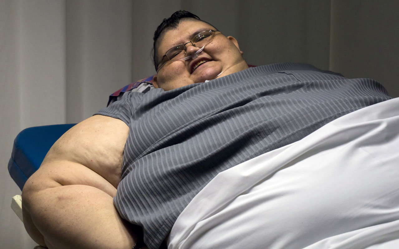 Mexican 32-year-old Juan Pedro Franco, who weighs almost 500 kilograms (1100 pounds) answers questions during a press conference at the hospital in Guadalajara, Mexico on December 21, 2016. Franco, who suffers from extreme obesity and has remained six years confined to bed, unable to walk, is being assessed by doctors and will begin a special diet and exercise routine with the aim to lose 59 kilograms before undergoing a by-pass biliopancreatic diversion in two times in June 2017. / AFP PHOTO / Héctor Guerrero