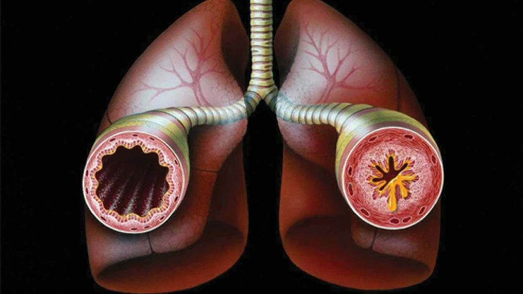 Mechanism of breathing and causes of asthma — Features — The ...