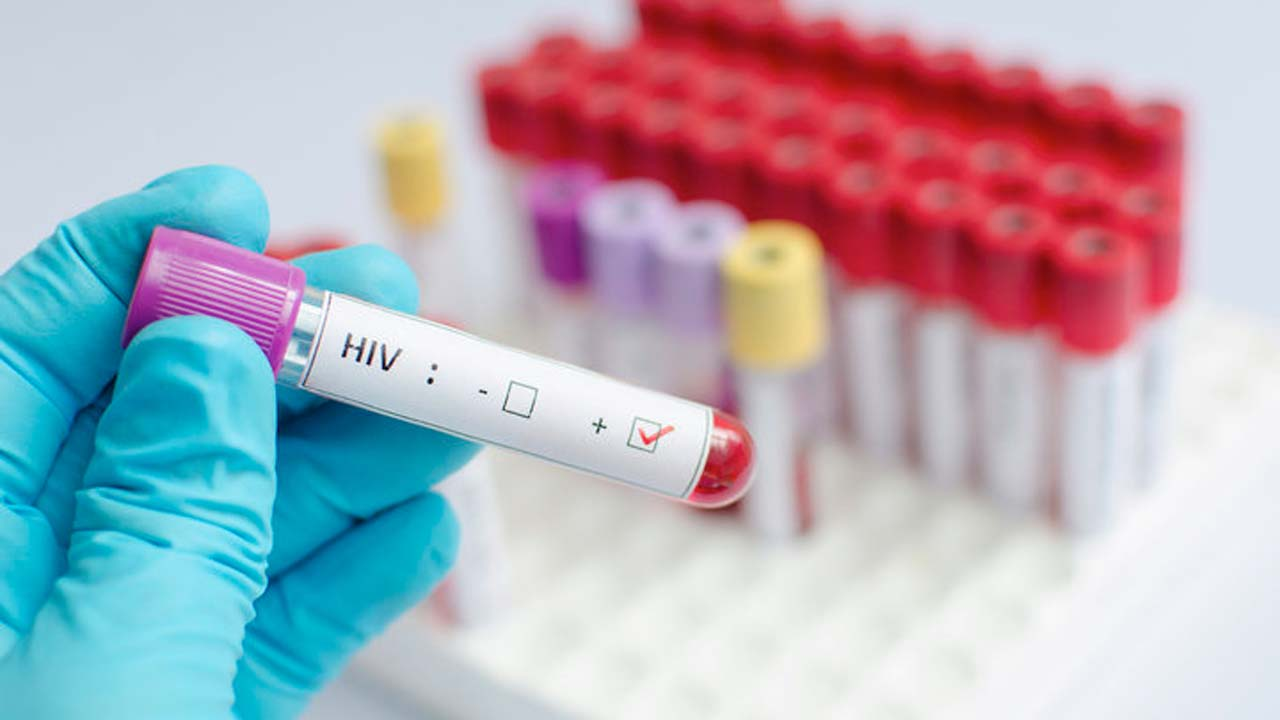 5,000 people to benefit from free HIV test in Lagos
