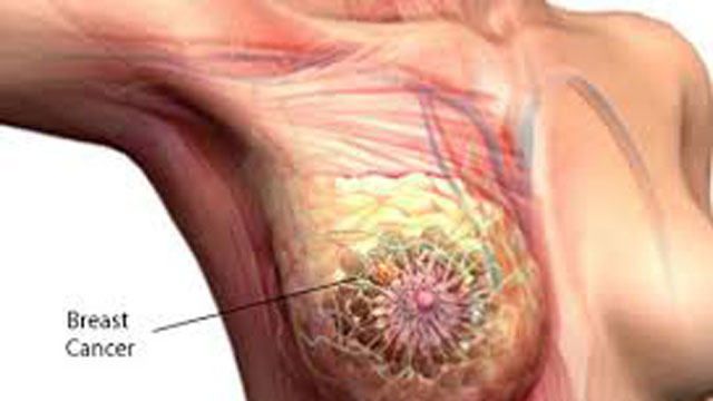 how to stop cancer naturally