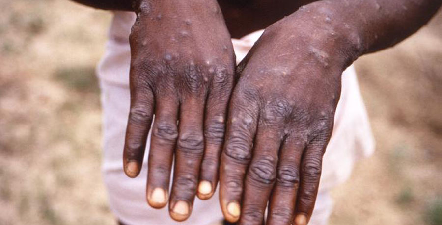 How monkey pox started in Bayelsa community - Full Gist