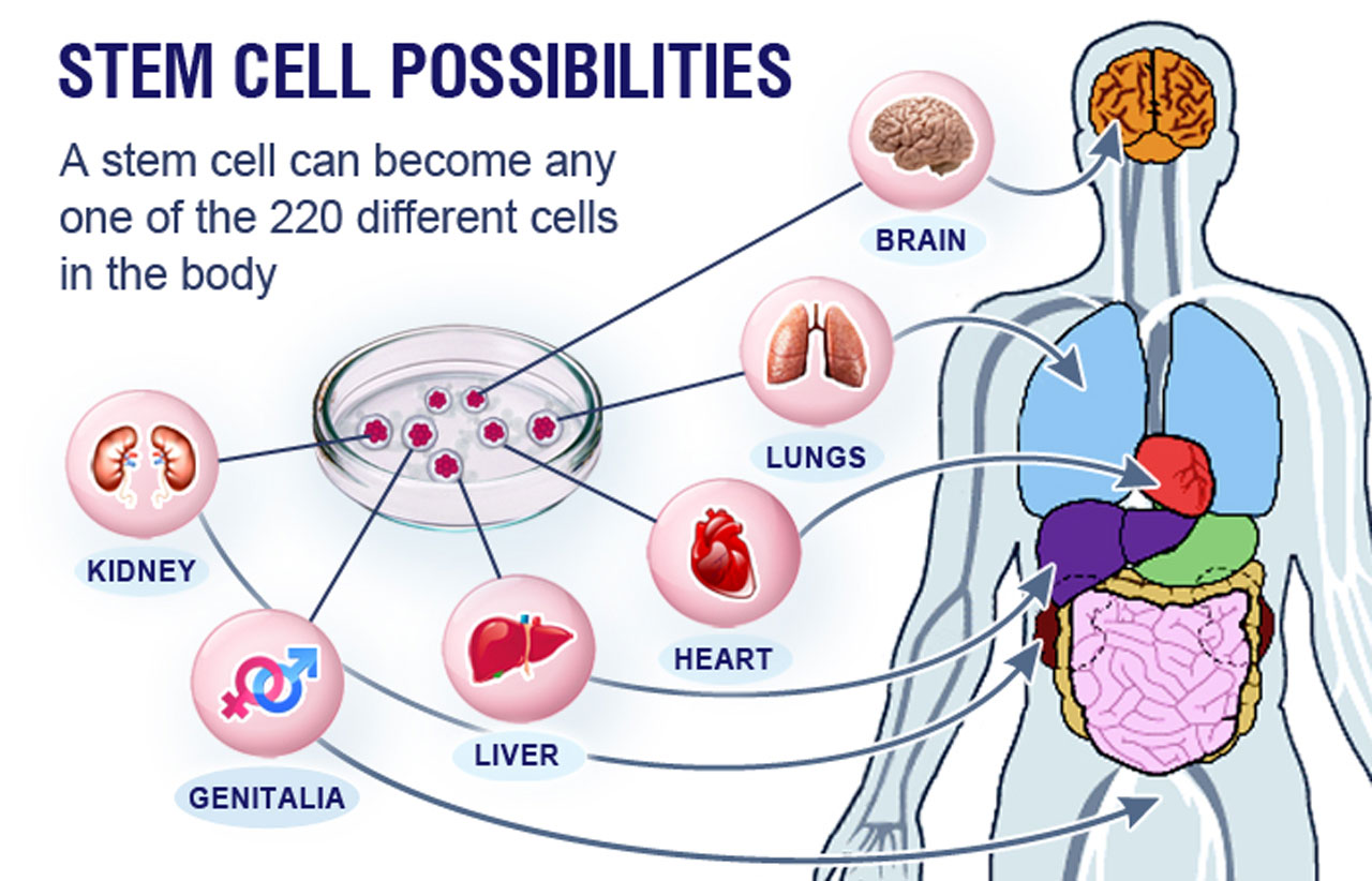 New applications of stem cell therapy — Features — The Guardian ...