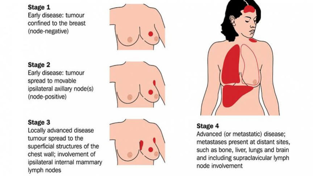 metasasis Supraclavicular breast