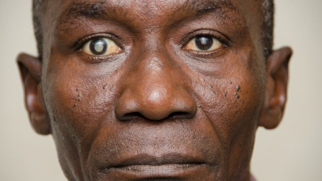 15 Percent Of Blindness Is Caused By Glaucoma – Expert