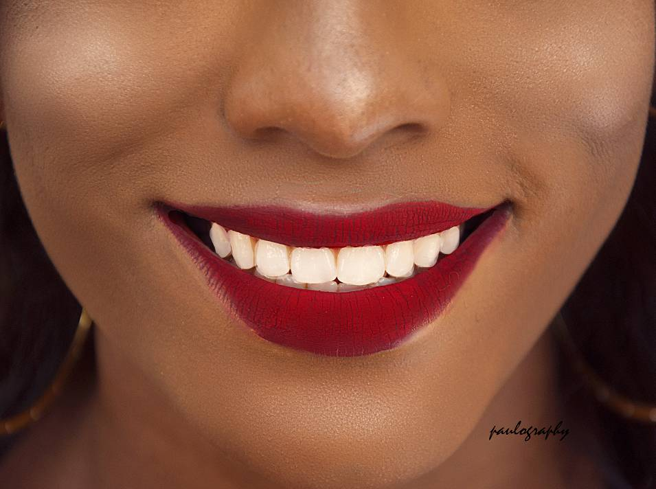 Three Things You Did Not Know Could Whiten Your Teeth The
