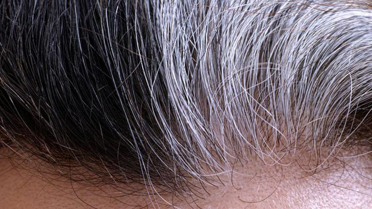 Sickness, stress may turn your hair grey