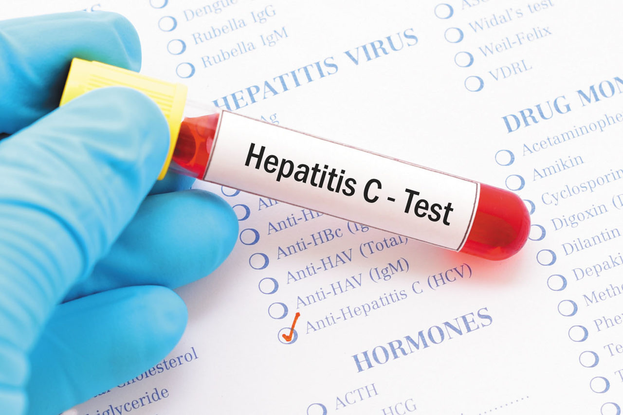 111 people dying daily due to hepatitis