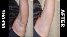 Black armpit