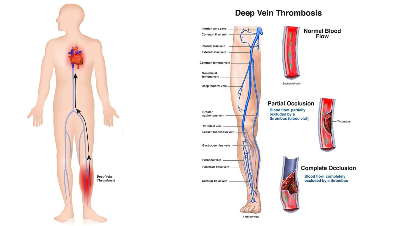 11 Celebrities Who Battled Deep Vein Thrombosis Risk pictures