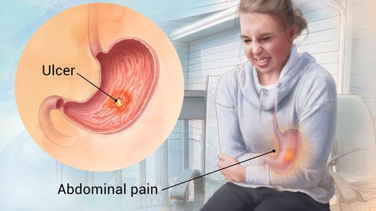 how to ease the pain of stomach ulcers