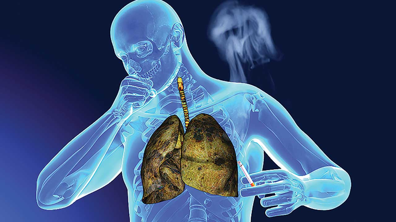 can diet help prevent lung cancer