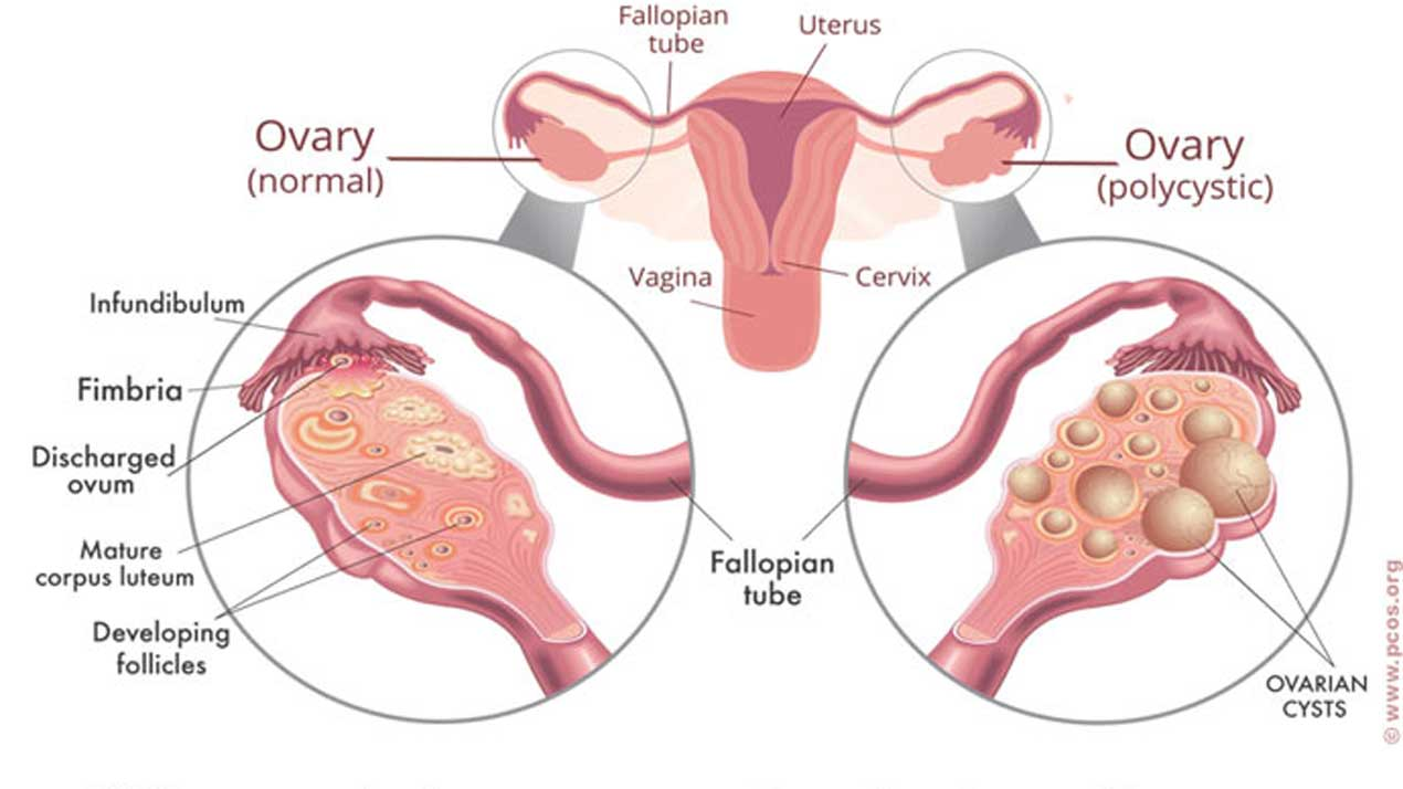Knowing Polystic ovarian syndrome (PCOS)   The Guardian