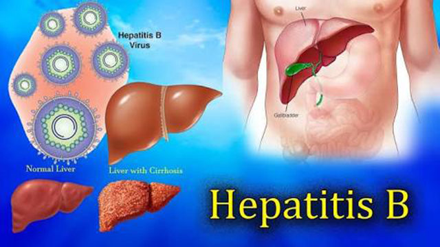 Hepatitis: Stay away from contaminated food, water, unprotected sex — Experts - Guardian