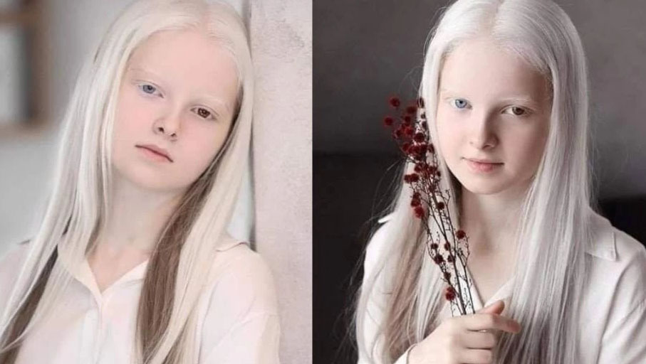 Amina Ependieva