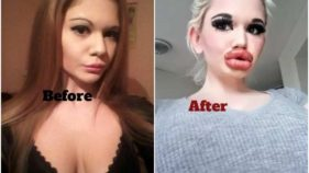 Andrea Ivanova Before and After